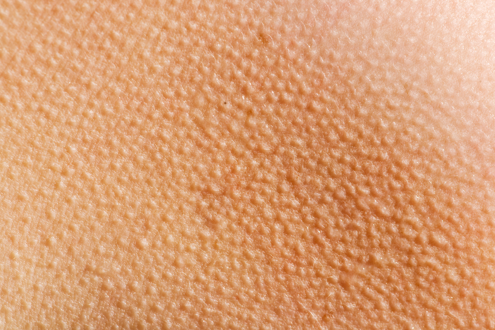Skin with keratosis pilaris