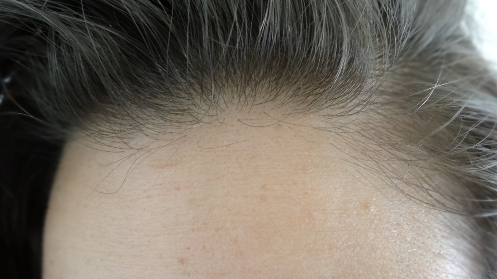 Forehead after Snake Venom Correcting Cream